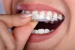 Dental Braces banner