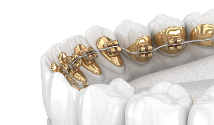 Are lingual braces right for me?