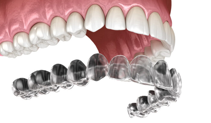 Discover the power of clear aligners