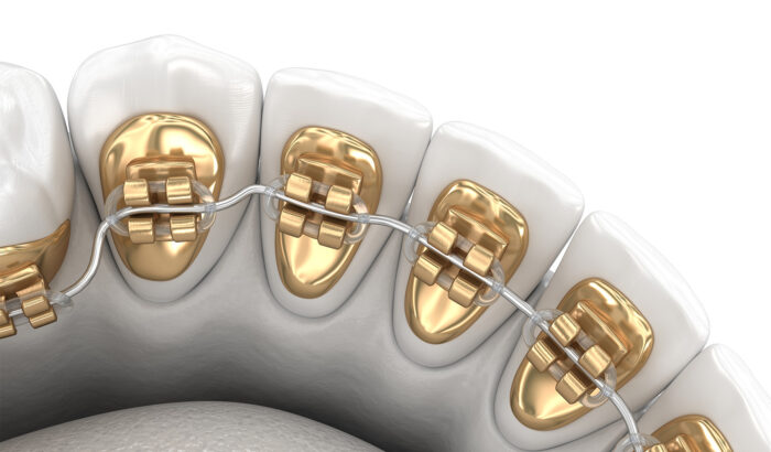 Discover the power of the lingual braces