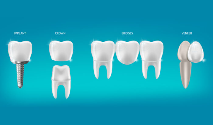 Are dental crowns right for me?