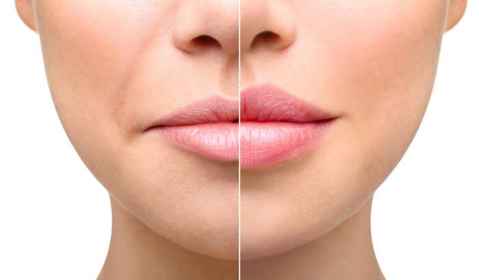 Discover the power of dermal fillers