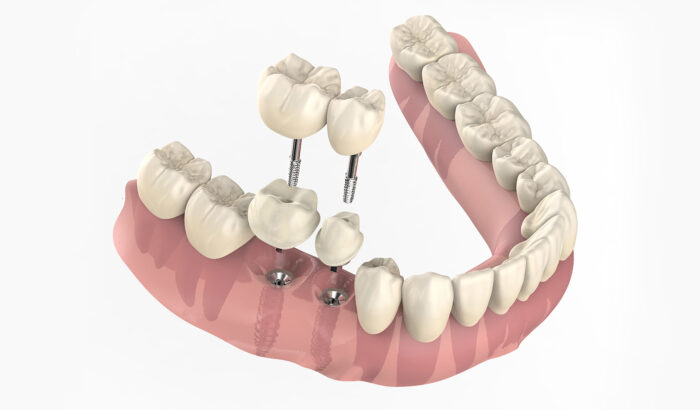 Are multiple dental implants right for me?