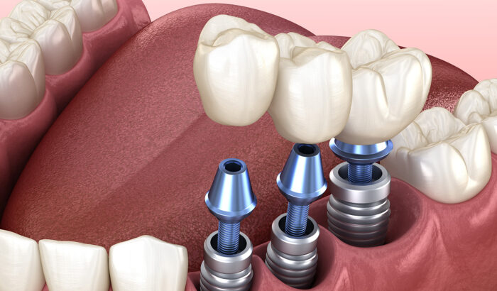Discover he power of multiple dental implants