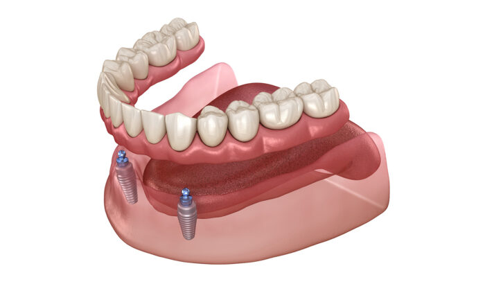 Discover the power of implant retained dentures