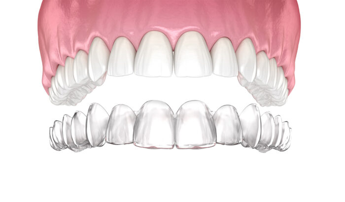 Discover the power of Invisalign Lite