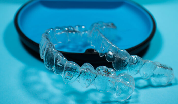 Is the Invisalign Lite right For me?