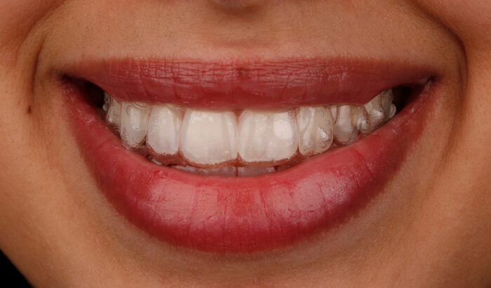 Is the Invisalign Full Right For Me?