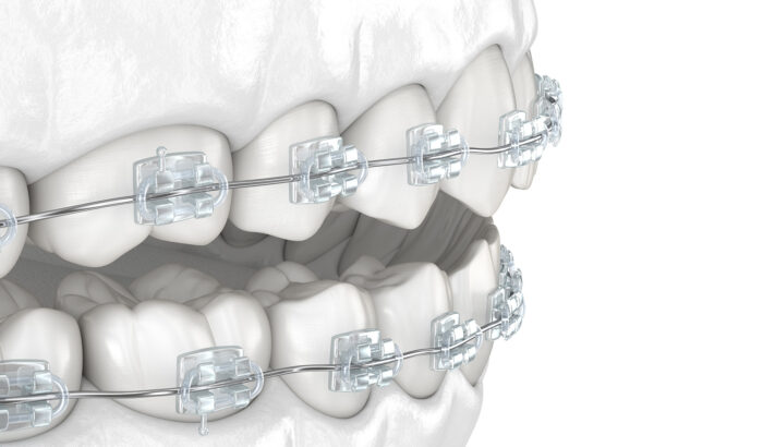 Discover the power of the clear braces