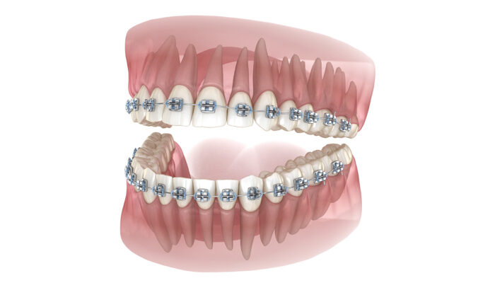 Are fixed braces right for me?