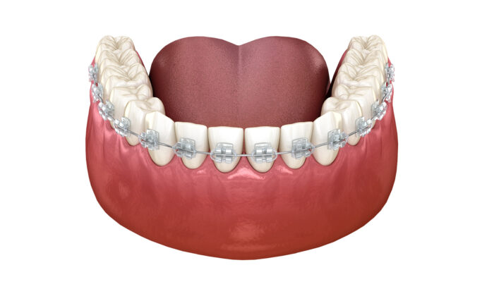 Discover the power of the fixed braces