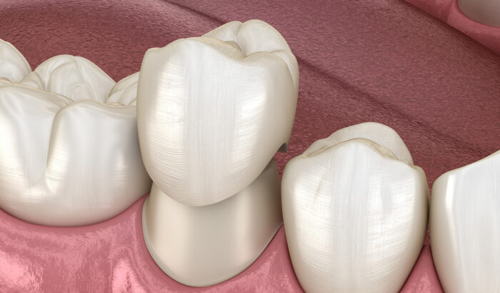 Discover the power of dental crowns
