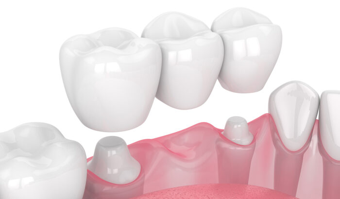 Are dental bridges right for me?