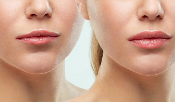 Discover the power of anti-wrinkle injections