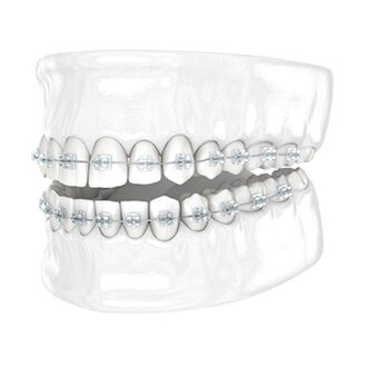 Clear Braces Both Arches