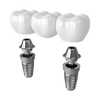 Multiple Dental Implants (3+)