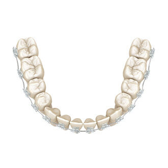 Clear Braces Single Arch
