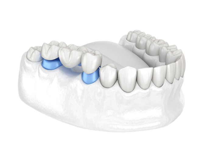 Dental bridge pricing