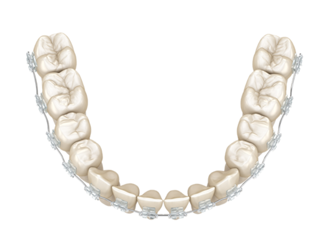 Clear braces pricing