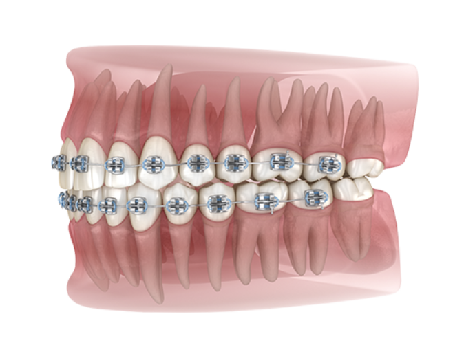 Fixed braces pricing