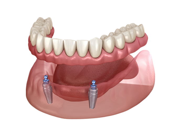 Implant retained dentures pricing